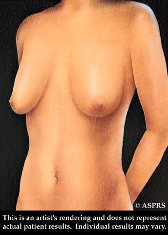 свисающие вниз груди фото